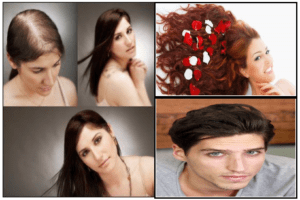 Regrow Hair Protocol working